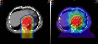 Image result for proton therapy images