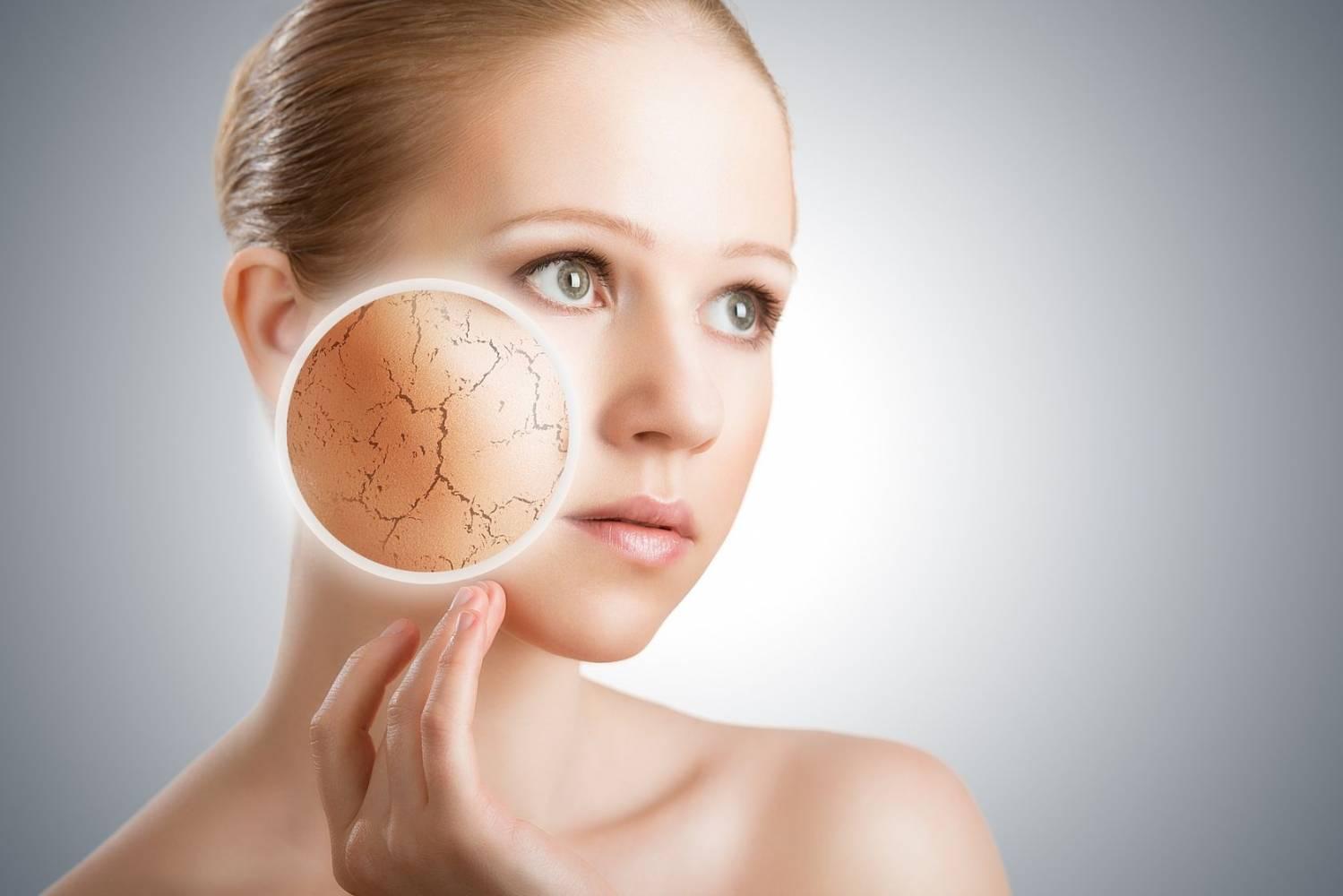 Сухая кожа лица: 5 способов увлажнить - харьковские новости Status quo
