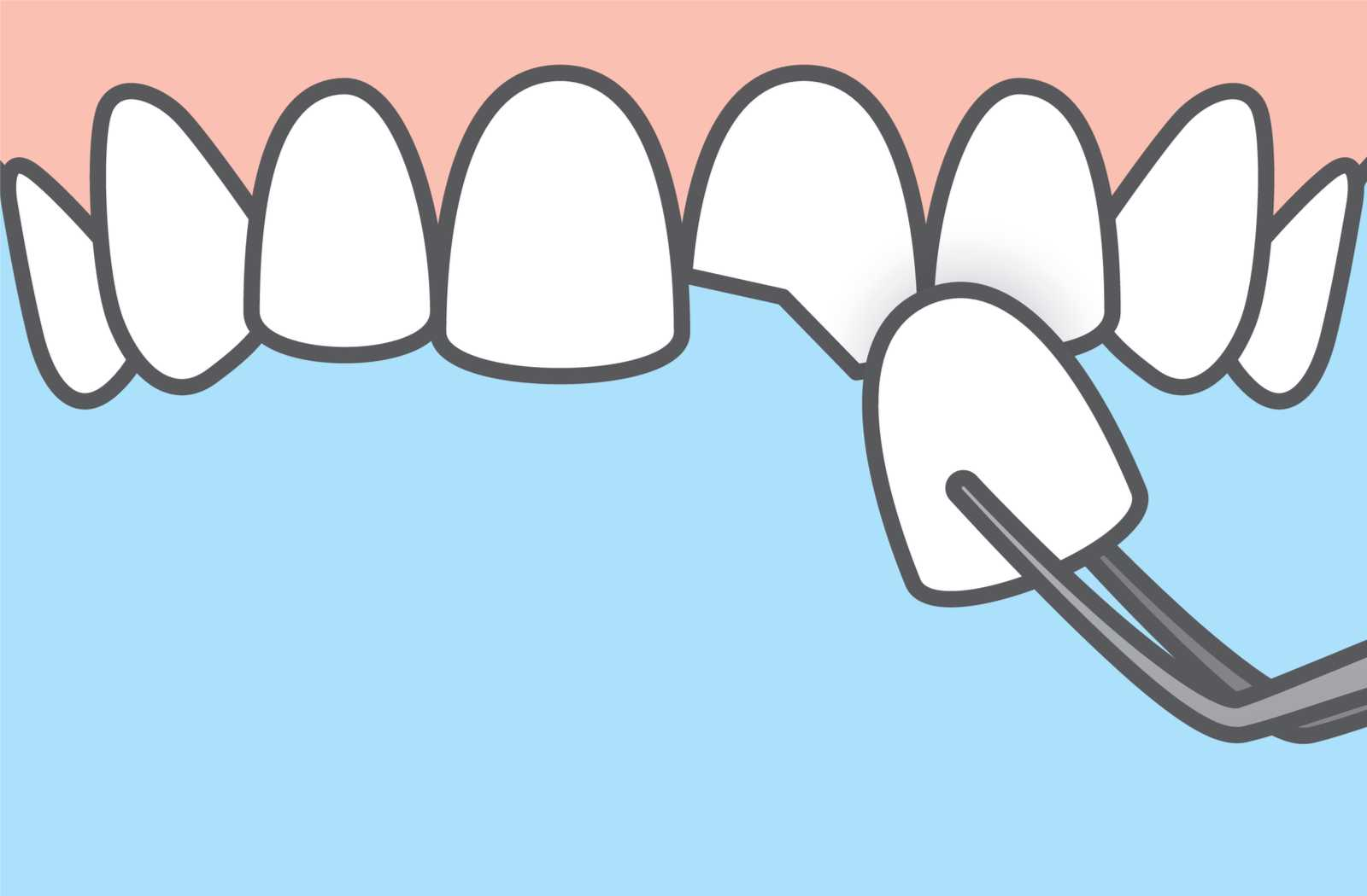 illustration of veneer covering chipped tooth with bright blue background