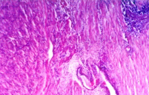 Microscopic picture showing cellular infiltration in the myometrium of a metritis affected buffalo (uterus obtained from abattoir material).