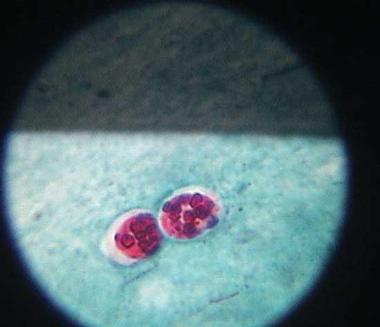 Acid fast stain of a fresh stool specimen showing a form of cryptosporidium