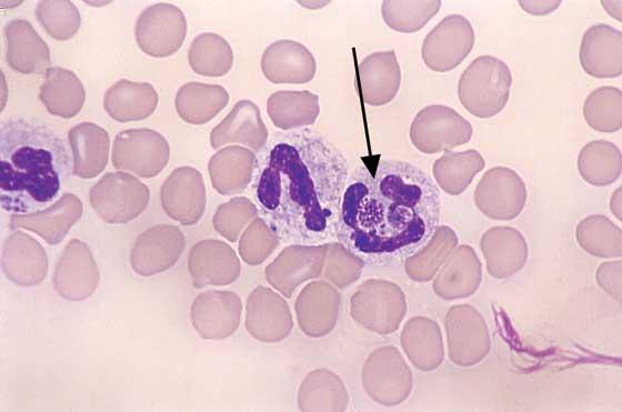 Canine Ehrlichia: Round, granular, basophilic inclusion in neutrophil cytoplasm (arrow) is an Ehrlichia morula (100x).