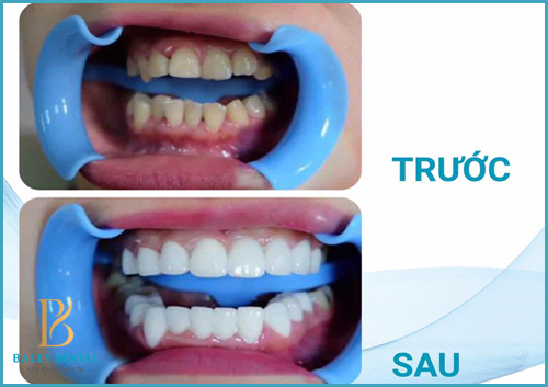 Vì sao sau khi bọc răng sứ bị ê buốt, đau nhức - Nha Khoa Bally 1