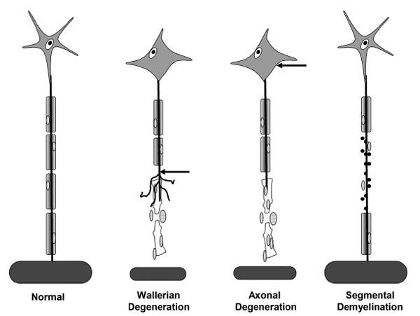 Basic pathologic processes affecting peripheral nerves