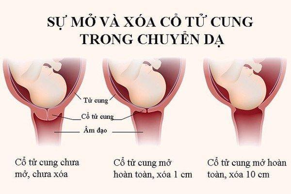 xoa-mo-co-tu-cung-wellbeing