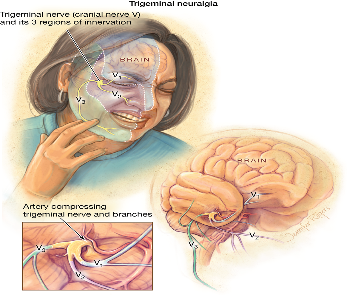 is tramadol used for trigeminal neuralgia