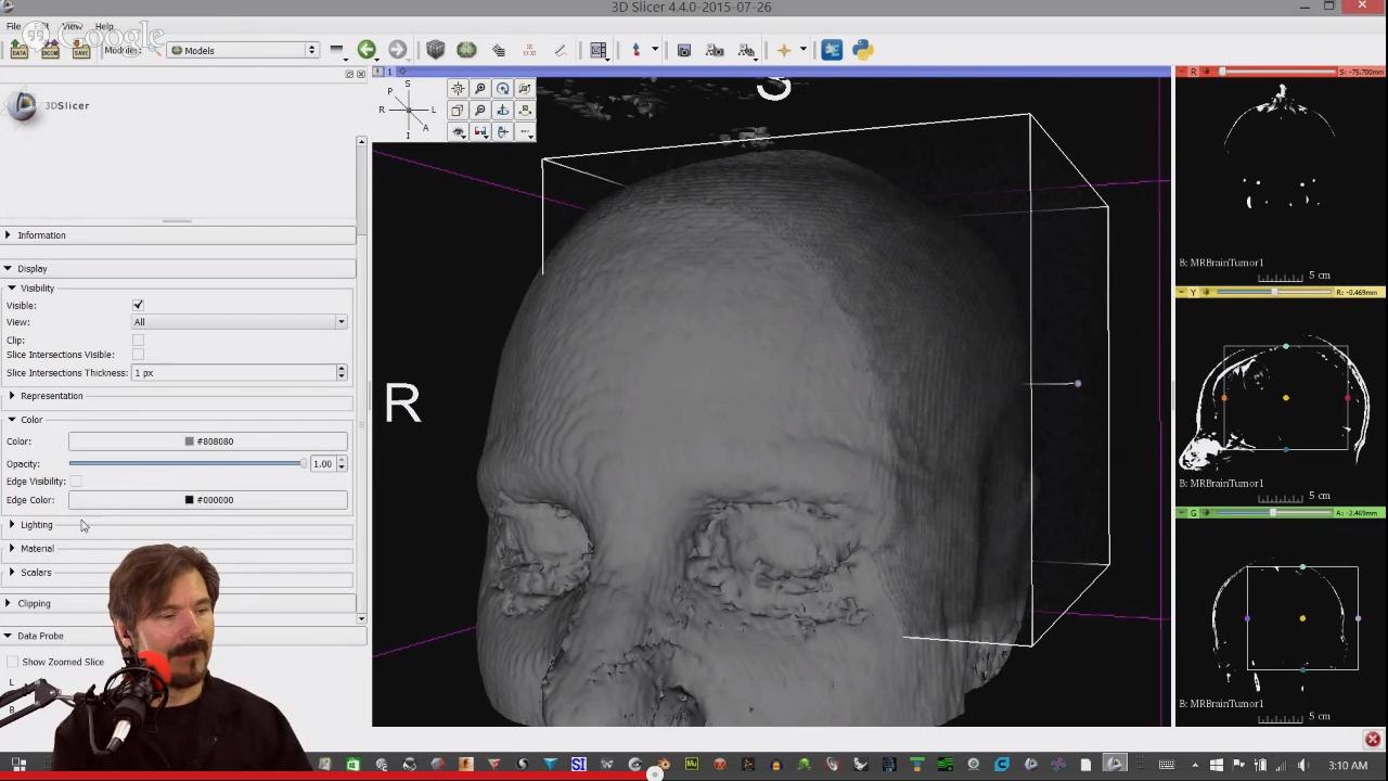 2015.07_3DSlicer-AllThings3D_podcast_MRBBrainTumor1_Model.png