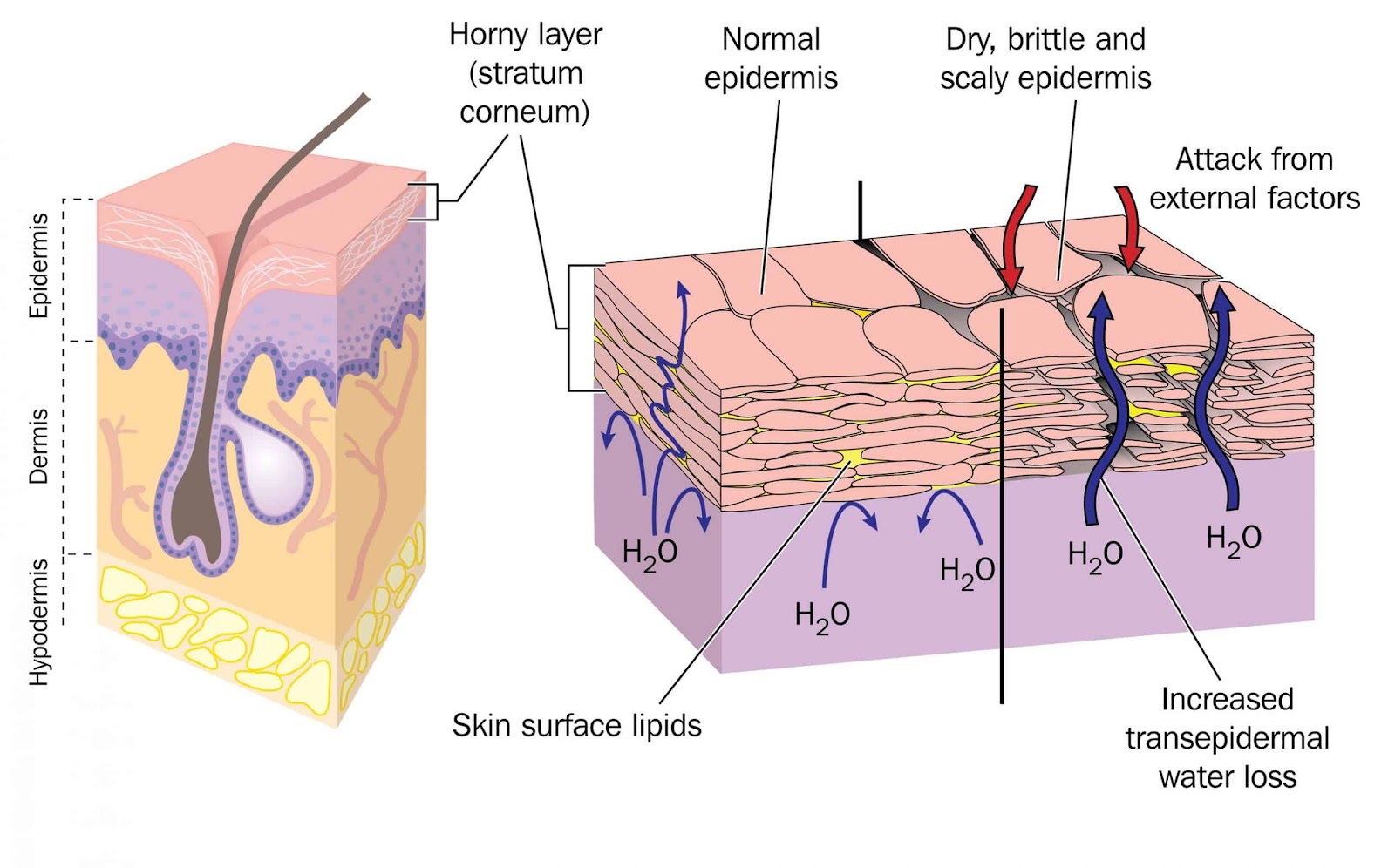Section through skin showing normal epidermis and skin surface structure resulting in water loss and dry, brittle, scaly skin
