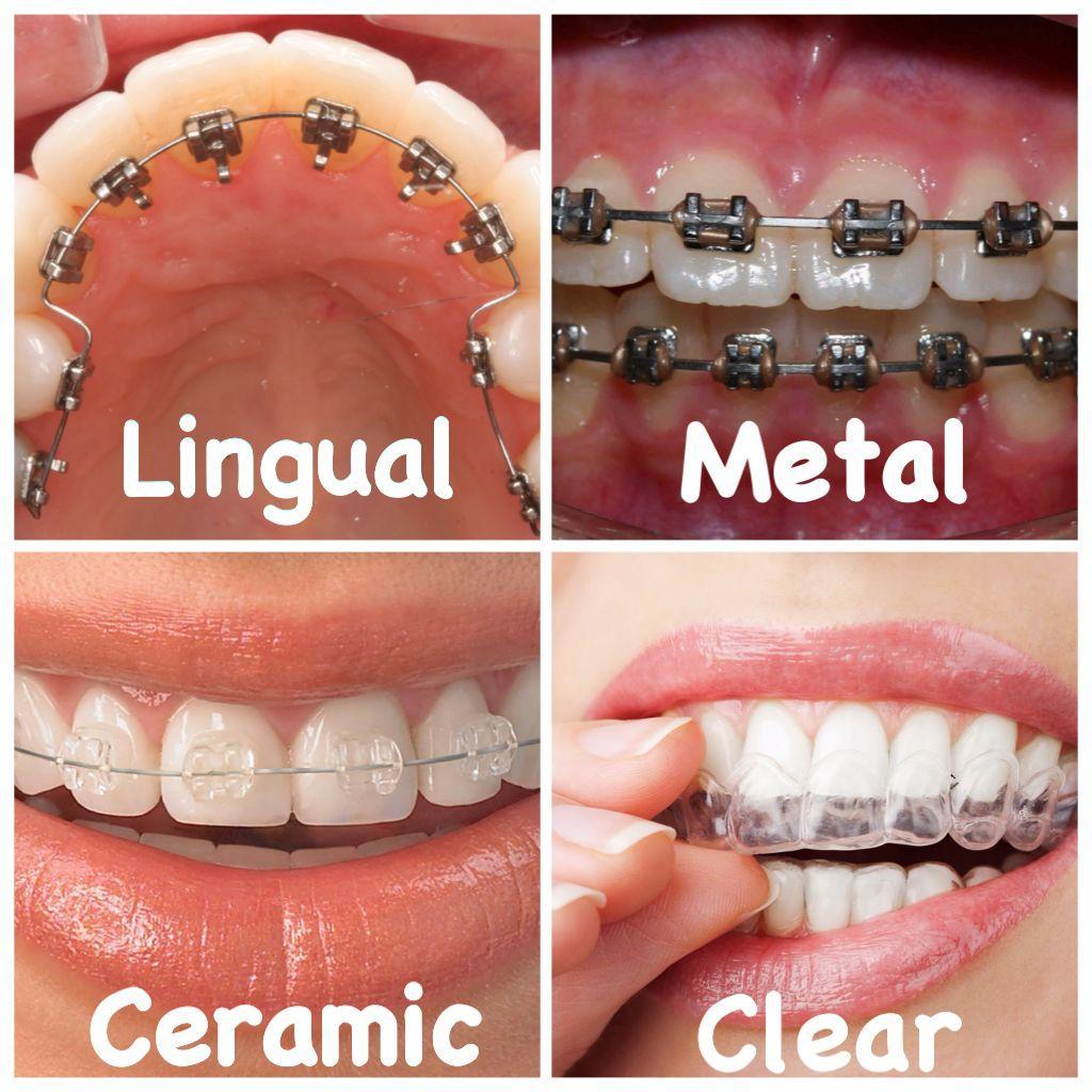 TYPES OF ORTHODONTIC APPLIANCES | DentaldelrioAlgodones