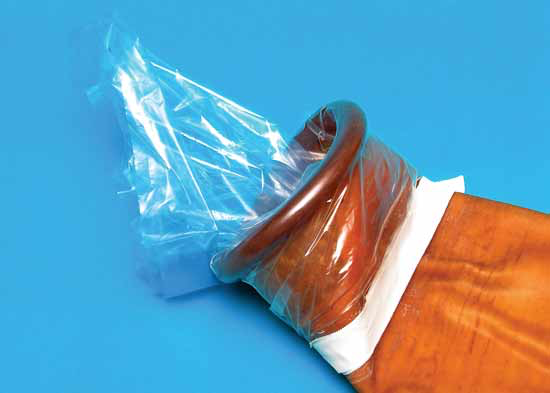 To prevent debris from entering the lumen of the artificial vagina, the sleeve is left in the artificial vagina and reflected over its opening