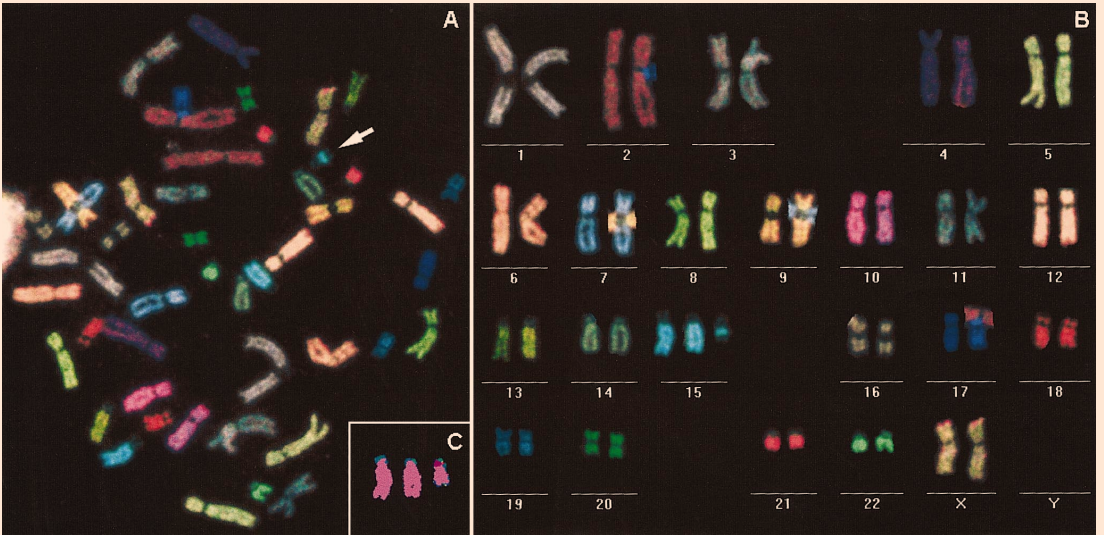 Fluorescent in situ hybridization (FISH) on karyotyped chromosomes using a different color probe for each chromosome. This test can be used to identify genetic anomalies in parents or fetus.