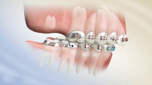 Niềng răng mắc cài tự buộc và thường thì loại nào tốt?