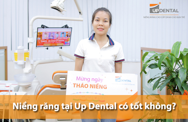 nieng-rang-tai-up-dental-co-tot-khong