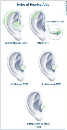 Styles of hearing aids for hearing loss