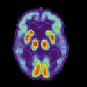 PET-сканирование эмоцианальных зон мозга при болезни Альцгеймера демонстрирует угасание активности в височных долях