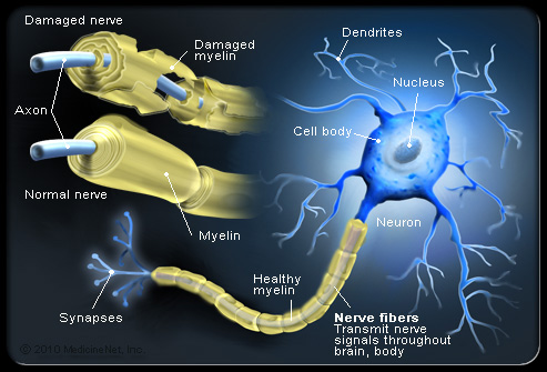 multiple-sclerosis-s4-illustration-of-nerve-fibers-and-myelin-attack-in-ms.jpg