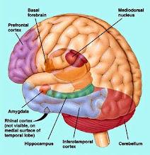 Pengobatan & Penyembuhan Tumor Otak  Medulloblastoma