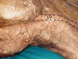 Left jugular vein (LV) thrombosis which has resulted in prominent collateral venous circulation.