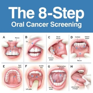 Oral-Cancer-Screening.jpg