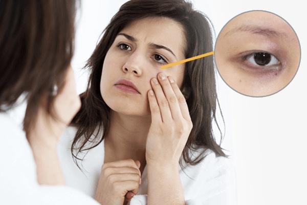 Có nhiều nguyên nhân dẫn đến tình trạng quầng thâm mắt
