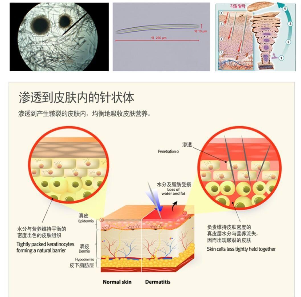 Cơ chế trị nám bằng phương pháp vi kim sinh học