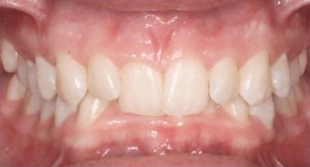 richmond-va-orthodontist