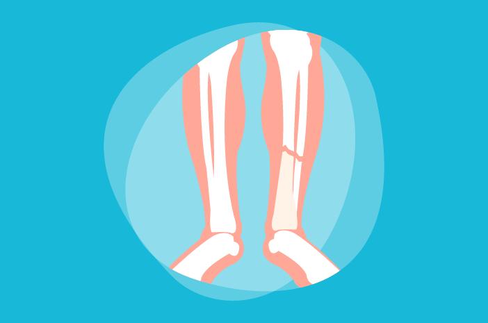 Image result for patah tulang halodoc