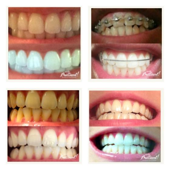 SmileBrillant Colalge.jpg