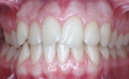 LM deviata dentale web.jpg