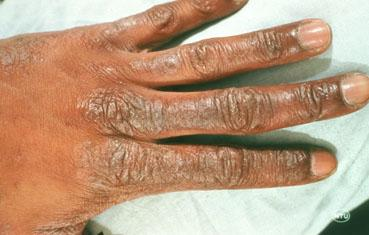 http://www.aad.org/Image%20Library/For%20the%20Public/Dermatology%20A%20-%20Z/dry-skin-adult-hand.JPG?code=fd54e949-c40a-49ed-bbc3-123a197fbd2e
