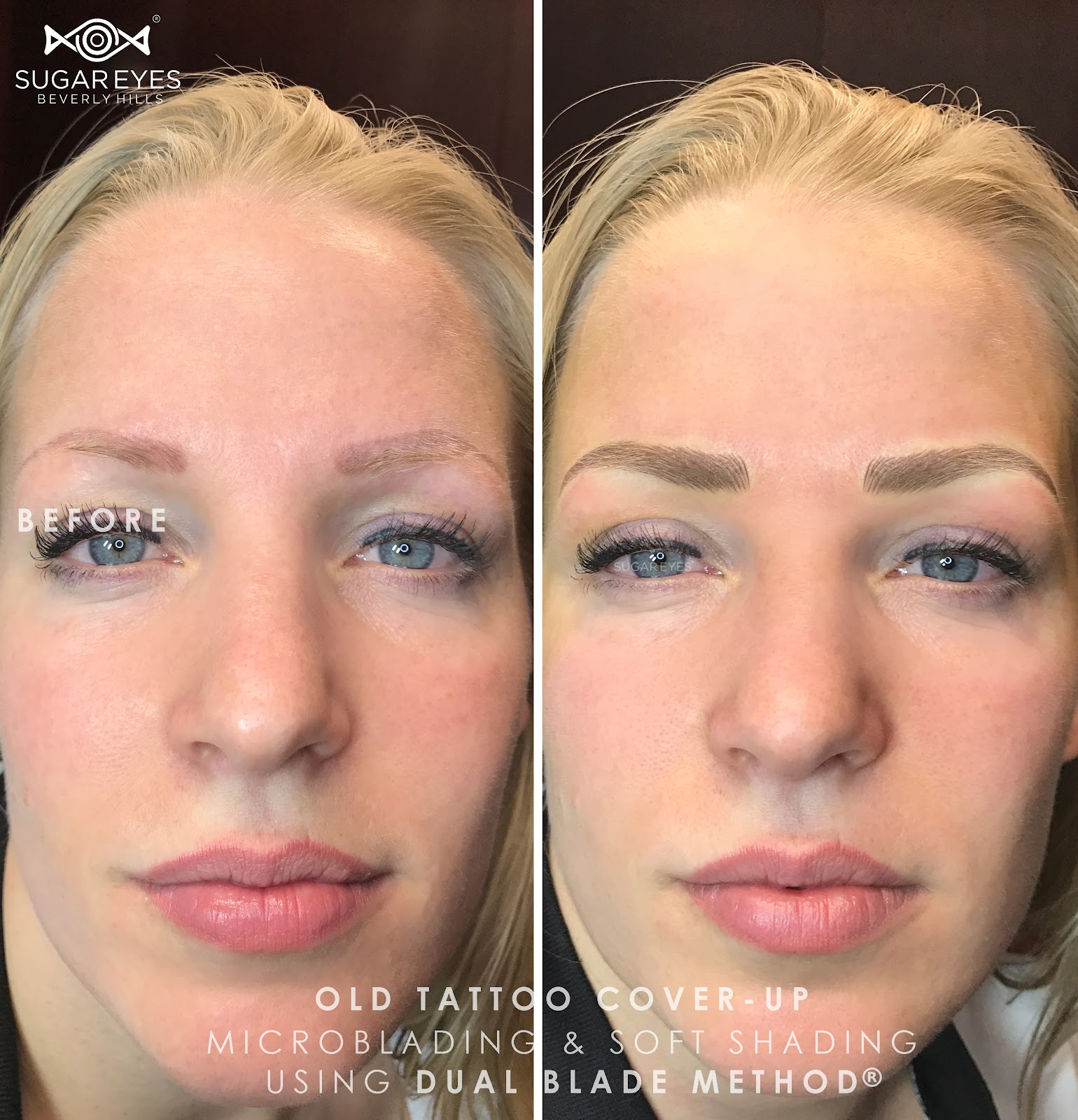 Microblading or tattooing