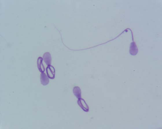 Coiled sperm tails. Smear of a sperm rich fraction, air dried and stained with Diff-Quick.