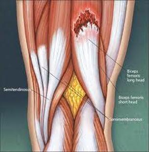 Hamstring Injury - Fit As A Physio | Mosman