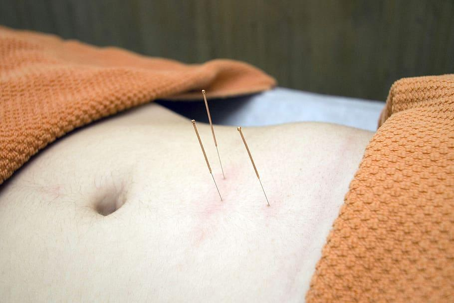 acupuncture, physiotherapy, wellness, relax, bless you, cure, osteopathy, therapy, stress, human body part