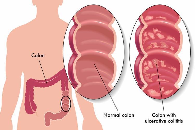 Ulcerative colitis - myDr.com.au