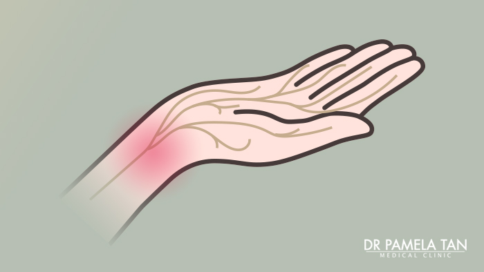 carpal-tunnel-syndrome-illustration