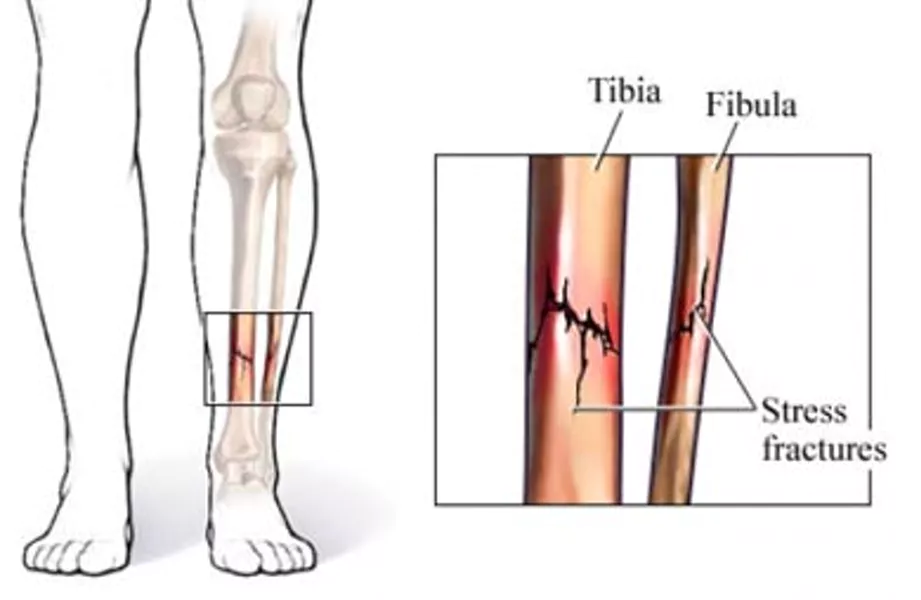 https://www.spartascience.com/resources/what-do-stress-fractures-shin-splints-and-foot-pain-have-in-common