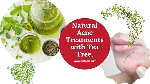 Acne Treatments Tea Tree.