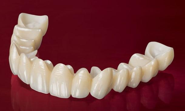 Điểm khác biệt giữa răng sứ zirconia và cercon - Nha khoa Bally 1