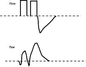 Waveforms for double triggering