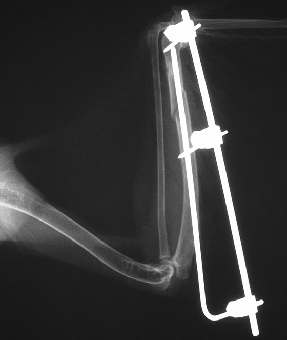 Oblique fracture of the distal ulna repaired using an intramedullary pin inserted in normograde fashion from the proximal ulna, two positive profile threaded pins placed in the proximal and distal fragments, and tie-in using a bar and clamps