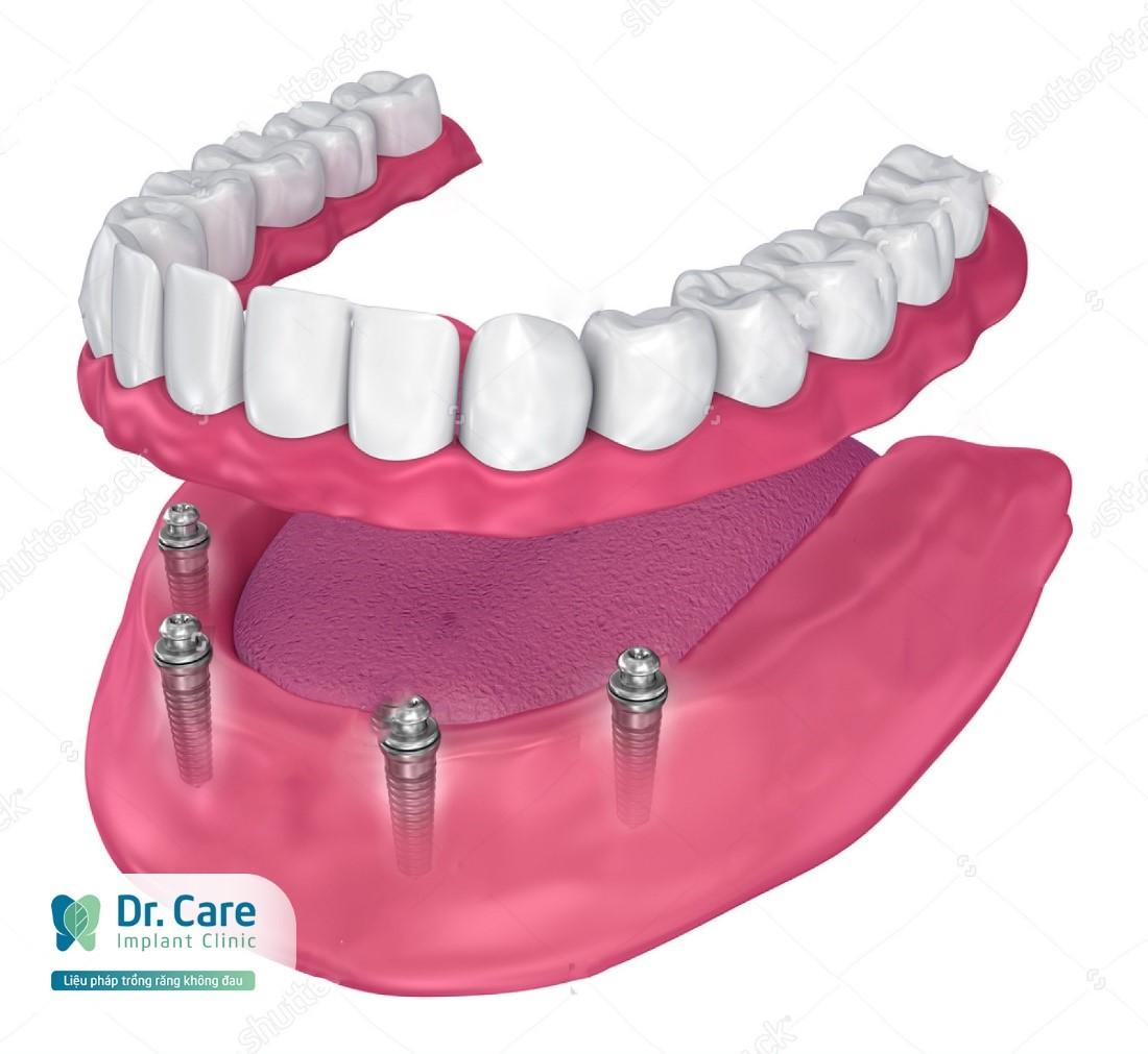 làm lại cả hàm răng