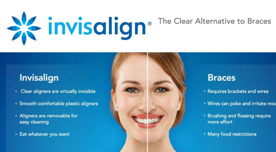invisalign-richmond-va