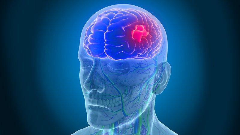 Resultado de imagen para stroke