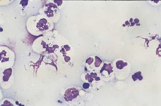 Abdominal fluid. Swollen degenerate neutrophils with phagocytosed bacteria indicate septic peritonitis which has caused a left shift with toxic neutrophils in the CBC (100x).