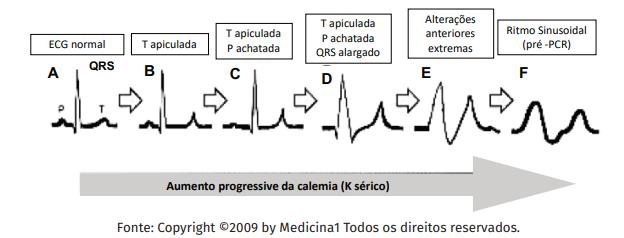 Hiperpotassemia no ECG - Sanarmed