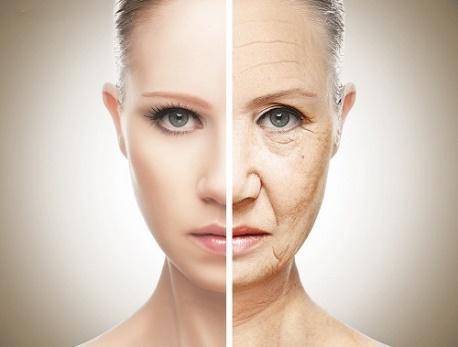 Nâng cơ trẻ hóa da mặt bằng chỉ Silhouette Lift  - Ảnh 3