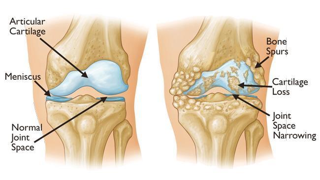 Arthritis of the Knee - OrthoInfo - AAOS