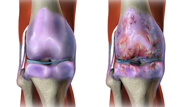 Picture of the inside of a healthy knee versus a knee with osteoarthritis.