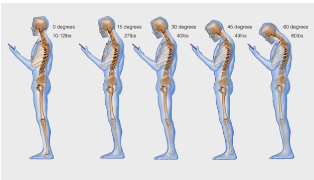 What Is Text Neck Syndrome In West Des Moines - Vero Chiropractic